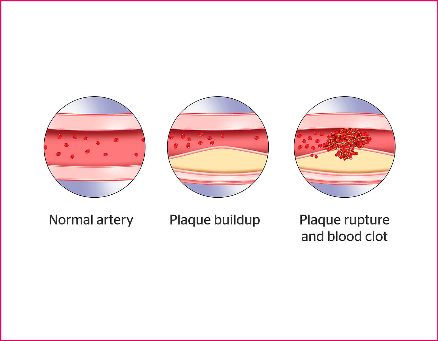 Diagram of normal artery, plaque buildup, and plaque rupture and blood clot